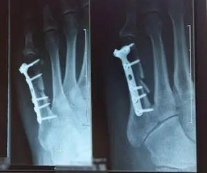 PA NJ injury lawyer broken bones